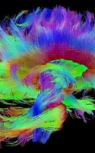 Image of brain at work from www.fastcodesign.com